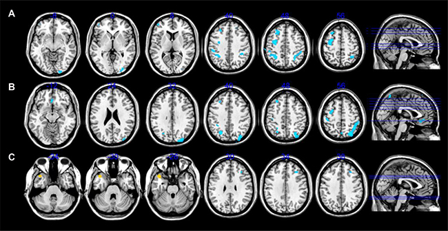 CBF alterations differences among AVH-schizophrenic patients without insight, with insight and healthy controls.