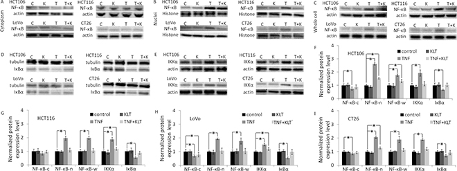 Western blot analysis of NF-κΒ p65, IKKα and IκBα expression.