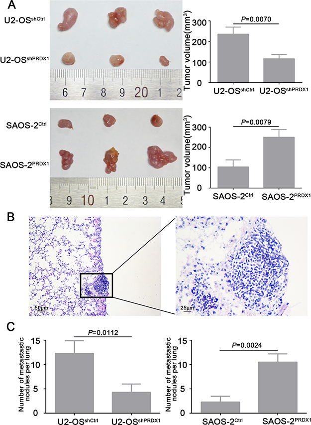 PRDX1 promotes osteosarcoma cells growth and metastasis in vivo.