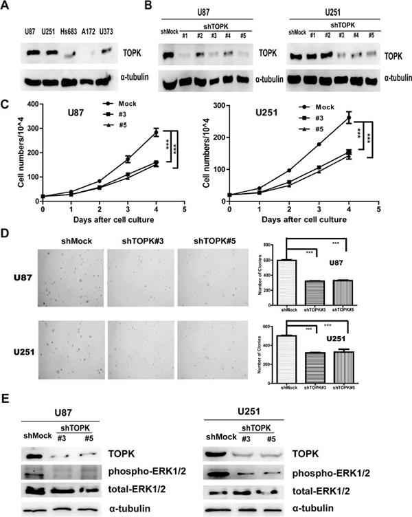 Knockdown of TOPK reduces tumorigenic properties ex vivo.