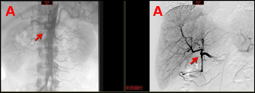 Arterial phase of contrast angiogram performed before (a) and after (b) the placement of the subcutaneous port and of the hepatic-artery catheter.