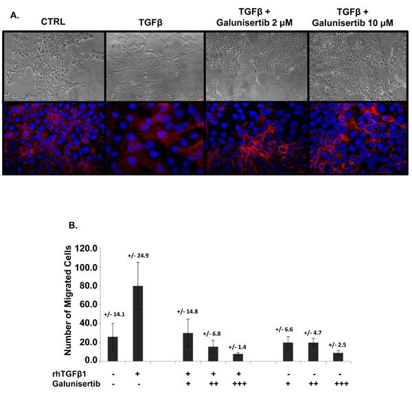 Galunisertib inhibits TGFβ mediated EMT and migration