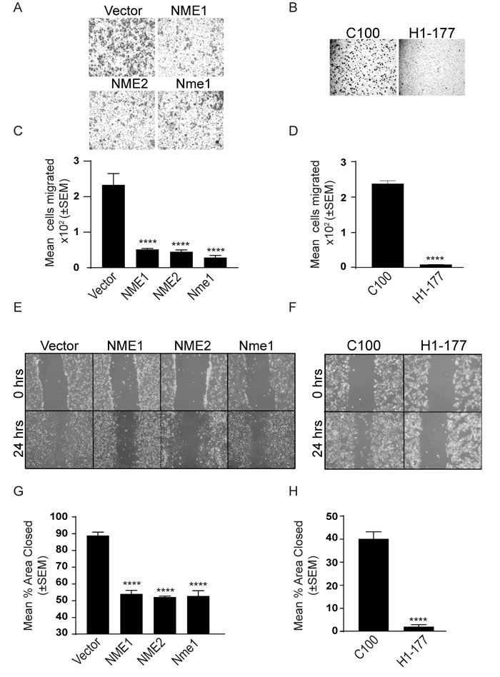 NME overexpression suppresses in vitro motility and migration.