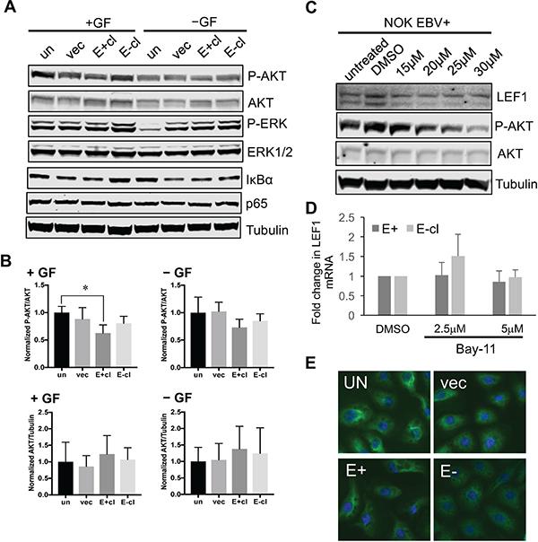 Upregulation of LEF1 in EBV-infected NOK is independent of AKT or NF-kB activity.