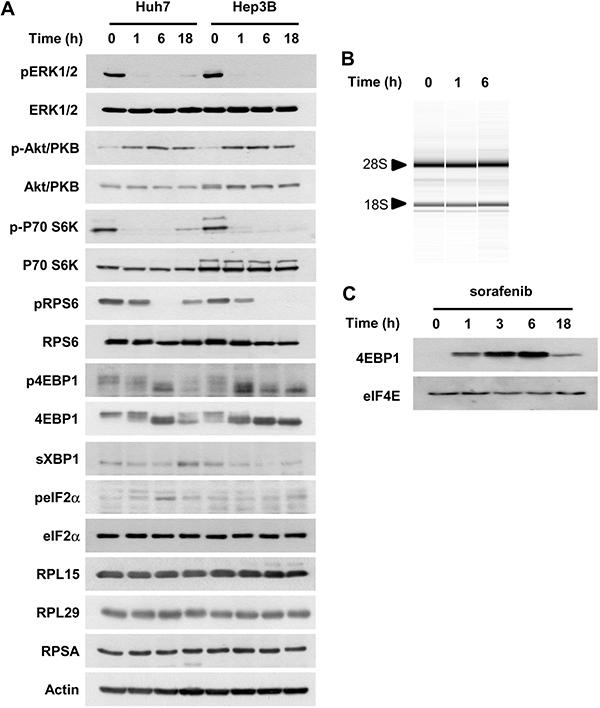 Sorafenib inhibits mTOR signaling and decreases translation initiation in HCC cells.