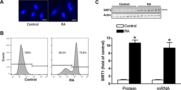 RA increased SIRT1 expression and induced binucleation of H9c2 cells.