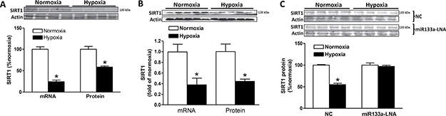 Effect of hypoxia on SIRT1 expression.