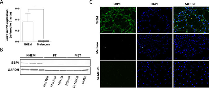 SELENBP1 in human melanoma cell lines.