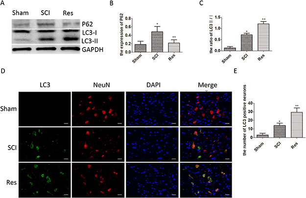 Resveratrol ameliorates neuronal autophagic flux after acute SCI in SD rats.
