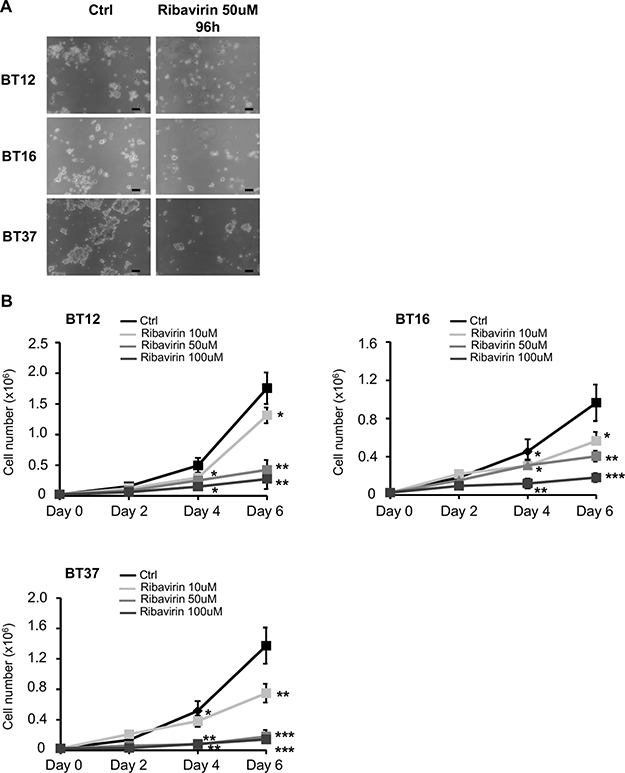 Ribavirin inhibits AT/RT cell proliferation.