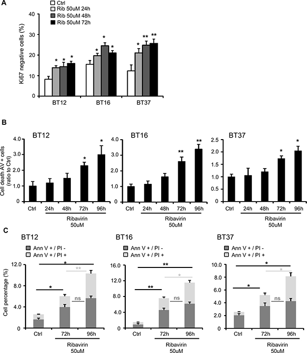 Ribavirin impairs AT/RT cell cycle and induces cell death.