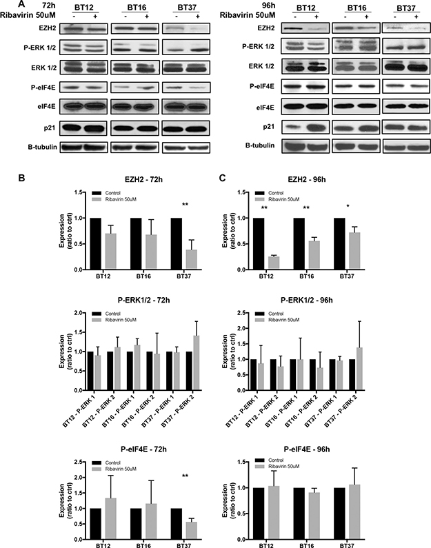 Potential mechanisms of action of ribavirin in AT/RT cells.