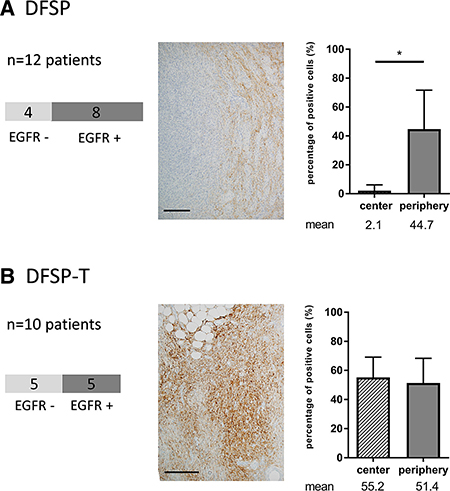 EGFR expression in patients with dermatofibrosarcoma protuberans (DFSP) and transformed DFSP (DFSP-T).