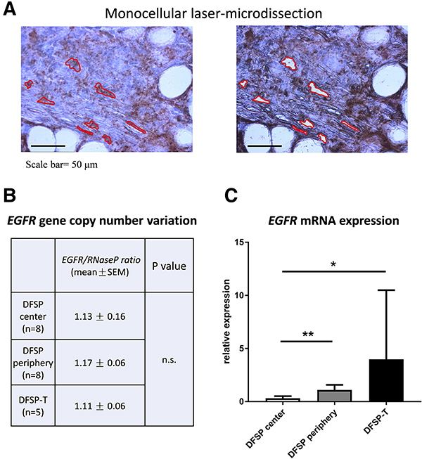 EGFR gene copy-number and mRNA analysis in microdissected tumor cells.