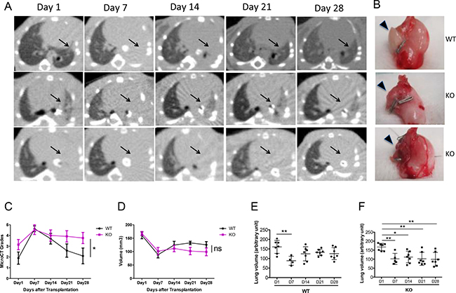 Increased consolidation of lung grafts in PTX3 KO mice.