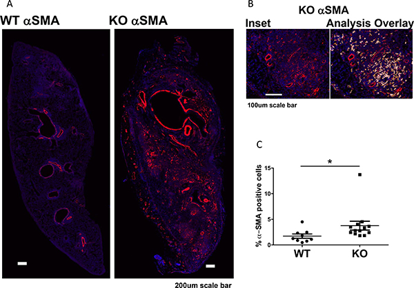 Increased myofibroblasts in lung grafts in KO mice (n = 13) compared to WT (n = 9).