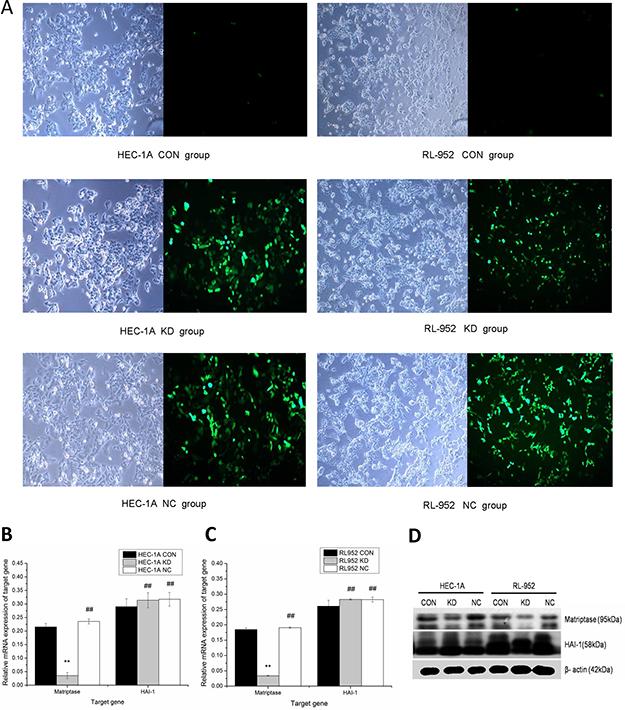 Down regulation of matriptase mediated by Lentivirus siRNA infection.
