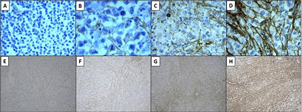 Tenascin-C expression was evaluated with tenatumomab antibody.