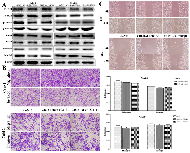 Observation on cell migration and invasion after Rh TGF-β1 stimulation in CD151-sh group cells.