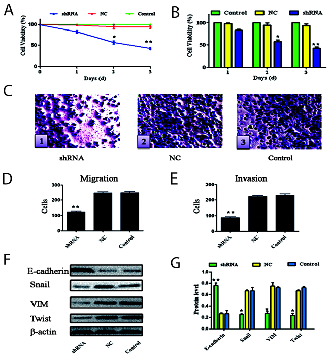 Silencing Ang-2 on effect of biological behaviors and EMT of cells.