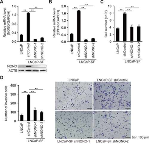 NONO silencing reduces LNCaP-SF cell growth and invasion.