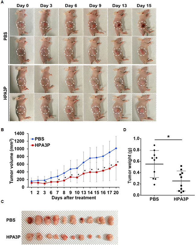HPA3P inhibits tumour growth in mouse tumour models.