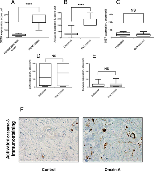 Effect of orexin-A on whole tumor tissue samples from patients with PDAC.