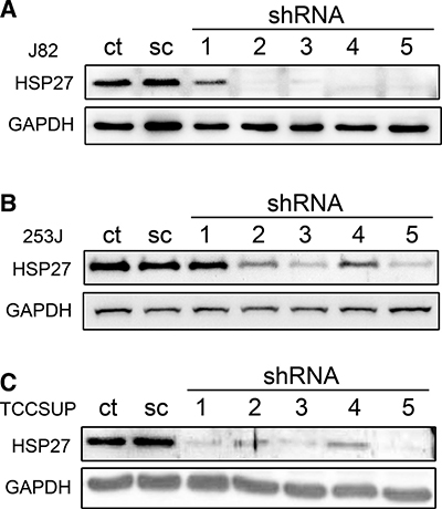 shRNA-mediated knockdown of HSP27 in BC cells.
