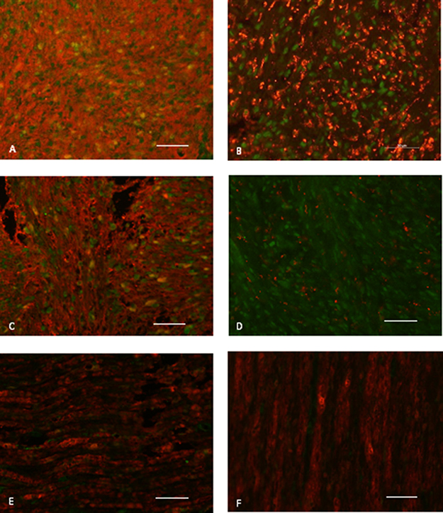 CXCR4 and CXCL12 expression on paraffin-embedded sections of a representative vestibular schwannoma sample.