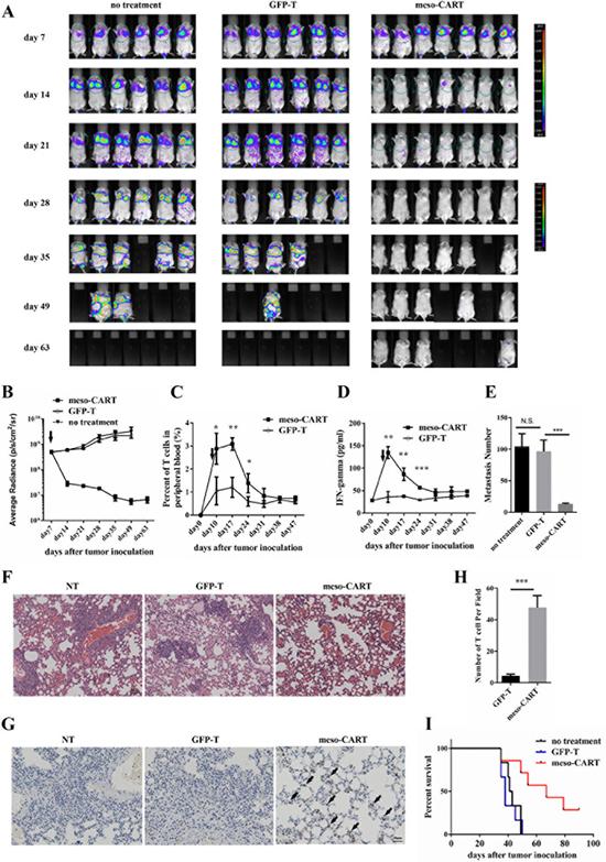 Meso-CART cells inhibit lung metastasis arising from pancreatic cancer.