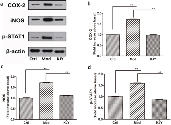 Effect of KJY on expression of COX-2, iNOS and p-STAT1 in renal tissue in the rat model of chronic renal failure.