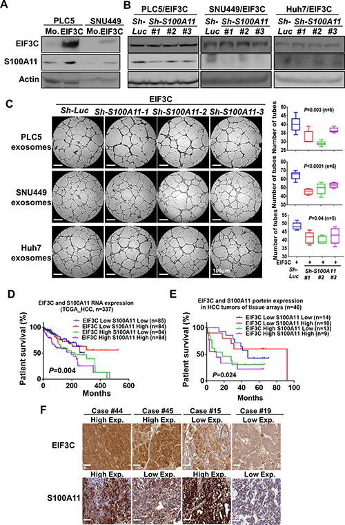 S100A11 involved in EIF3C exosome-enhanced angiogenesis and tumorigenesis in HCC.