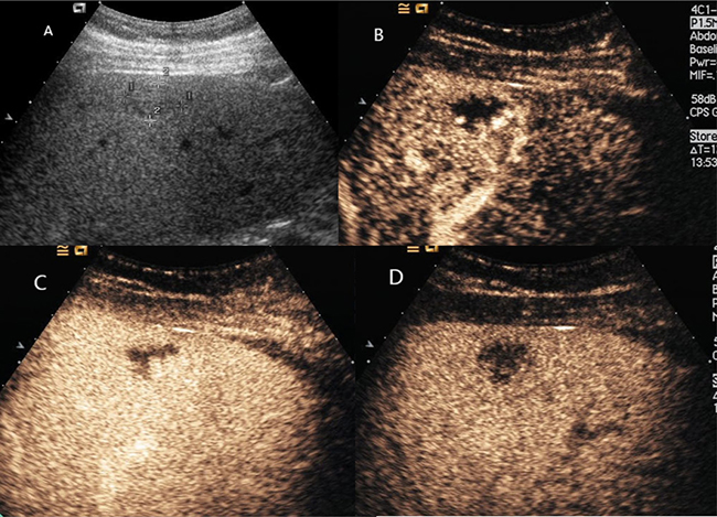 Hepatic hemangioma with washout in the delayed phase.