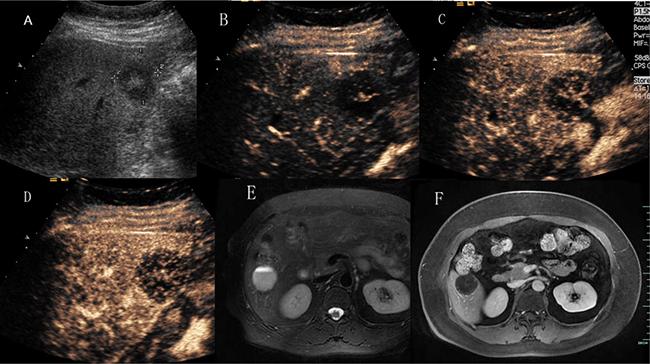 Hepatic hemangioma with slowly spoke wheel enhancement.