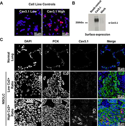 Immunofluorescent staining for Cav3.1.