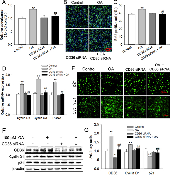 Knockdown of CD36 eliminated the enhancement of HC11 proliferation induced by OA.