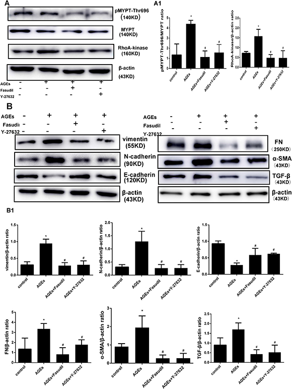 Fasudil and Y-27632 inhibit AGEs-induced RhoA signaling and EMT.