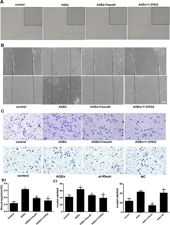 RhoA inhibition decreases AGEs-induced migration in HPMCs.