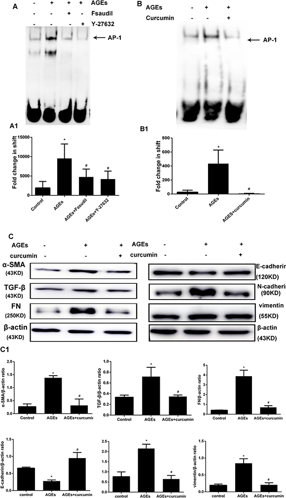 Rho-kinase mediates AGEs-induced activation of AP-1 in HPMCs.