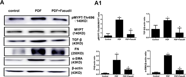 Fasudil prevents activation of Rho-kinase and reduces peritoneal fibrosis marker expression in rats.