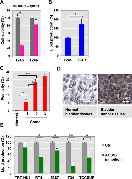 Cisplatin resistance is associated with ACSS2.