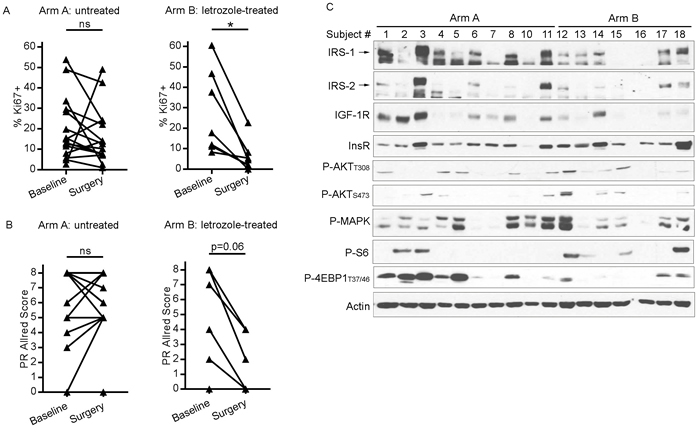 Presurgical estrogen deprivation in patients with ER+ breast cancer decreases tumor cell proliferation and IGF-1R/IRS-1/IRS-2 expression.