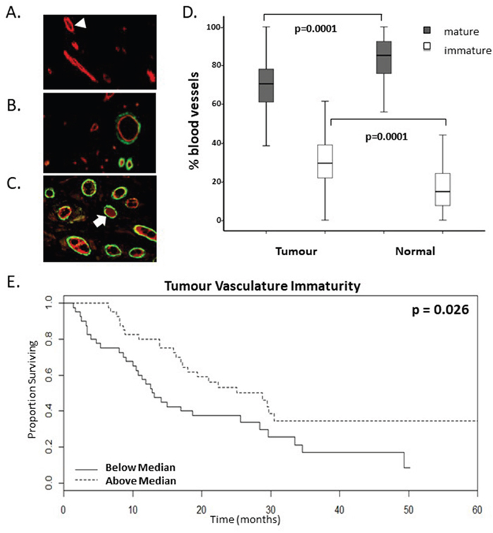 A higher proportion of immature vasculature correlates with enhanced survival rates of mCRC patients following bevacizumab treatment.