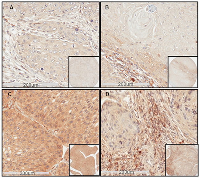 Sema4D expression in different clinical stages of HNSCC.