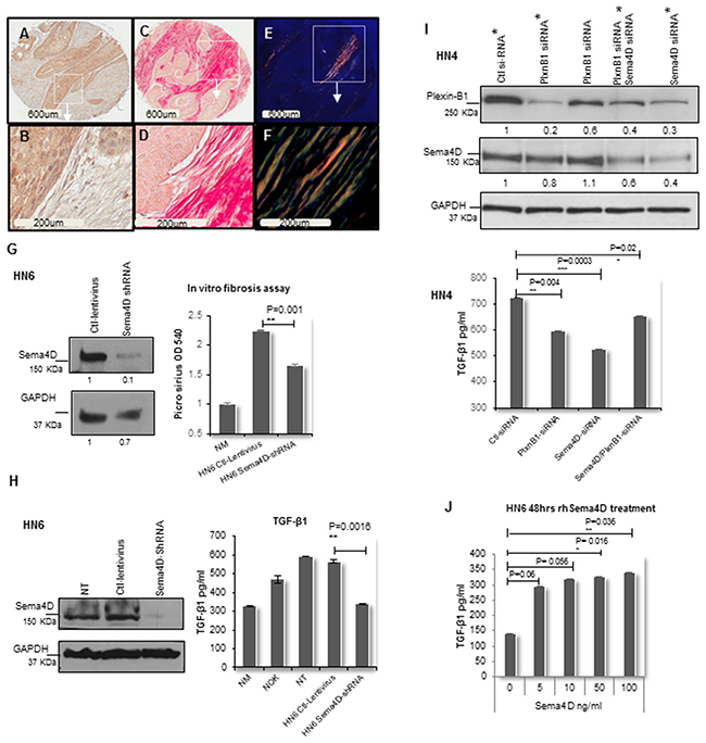 Sema4D-Plexin B1 pathway plays a role in TGF-β1 production by tumor cells.