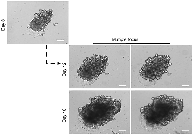 Long-term expansion of healthy organoids.