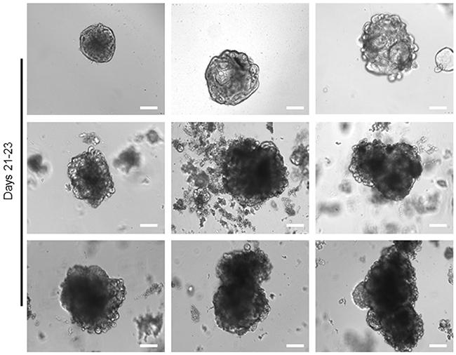 Long-term expansion of tumour organoids.