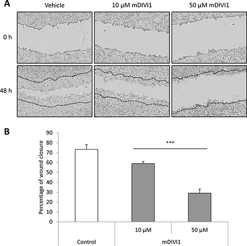 mDIVI1 treatment significantly reduces MCF7 migration in vitro.