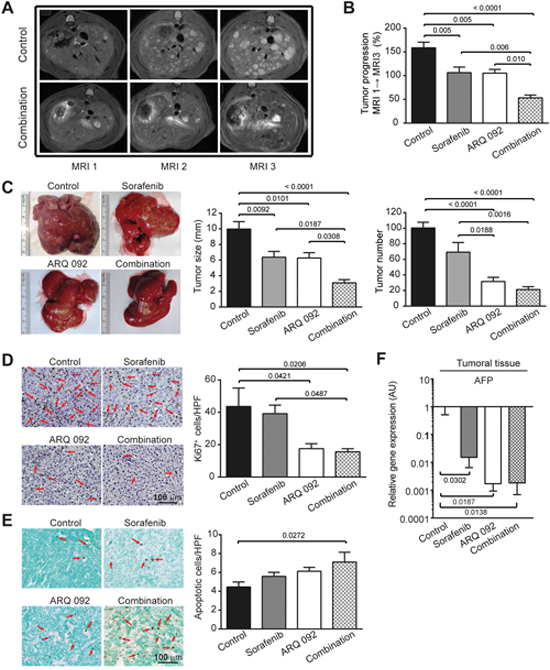 Anti-tumor effect of combination treatment.