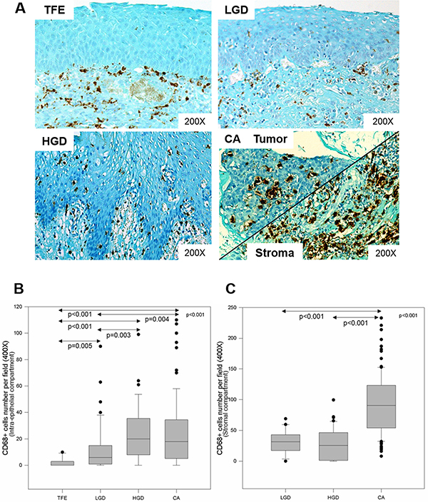 CD68+ macrophage infiltration increases during HNSCC progression.
